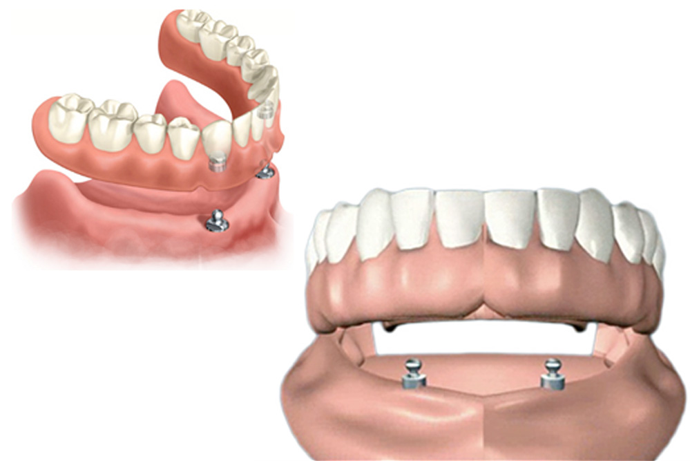 impant_retained_dentures